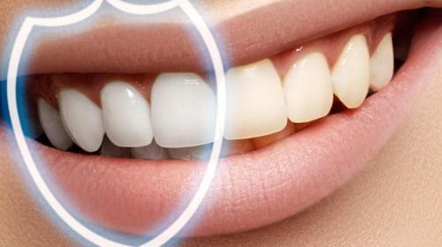 повреждения зубной эмали